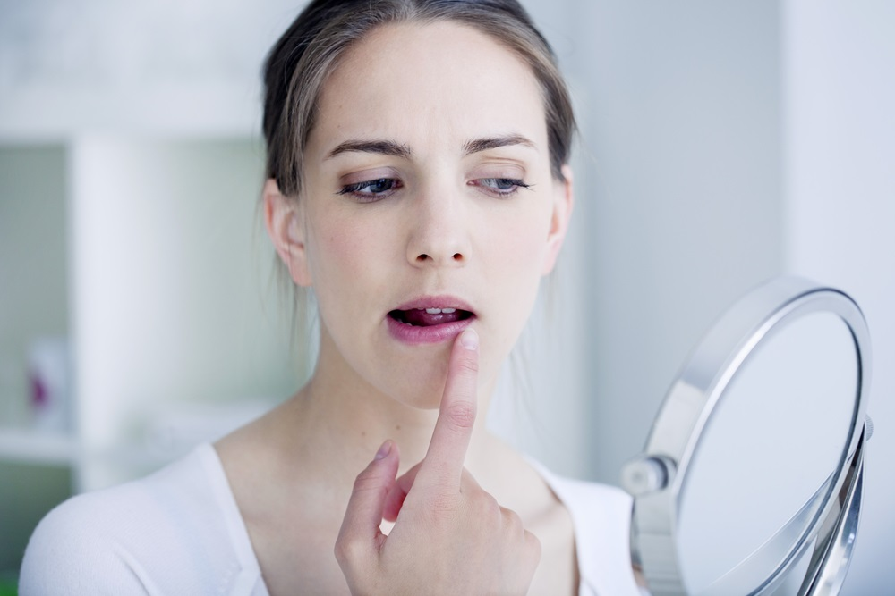 How to Stop a Cold Sore in its Tracks?